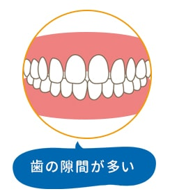歯の隙間が多い